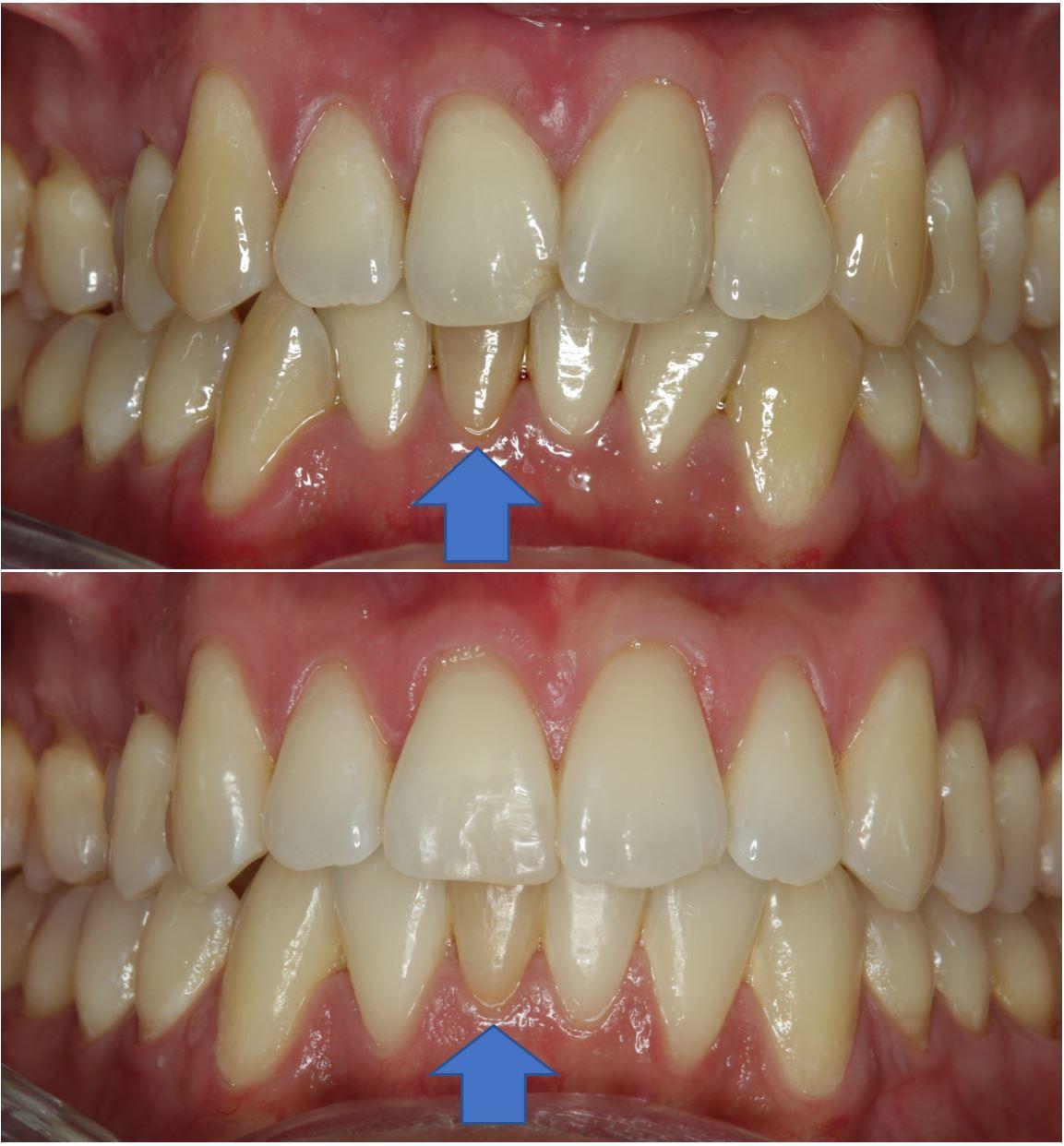 Ikke så vellykket bleking hos tannlegen