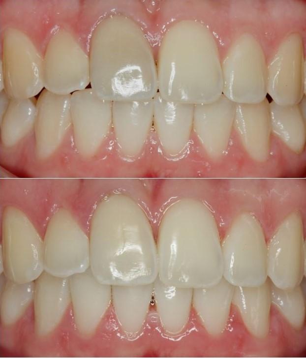 tannbleking grå tann